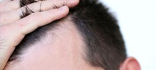 ¿Cómo se realiza un trasplante de pelo?