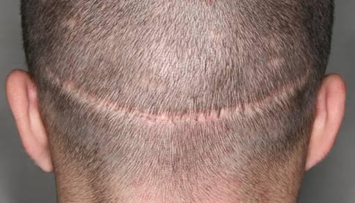 ¿Conoces las diferentes técnicas de trasplante de pelo?
