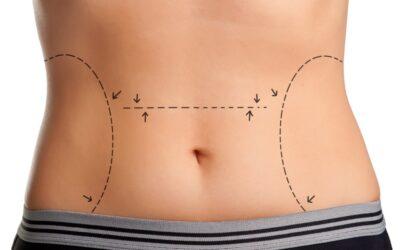 ¿Sabes qué es la liposucción y qué resultados puedes obtener?