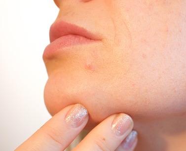 Prueba el tratamiento correctivo de arrugas y surcos con sustancias de relleno