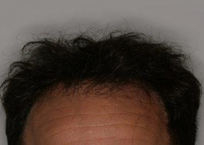 1-PRE-Alopecia-tipo-III