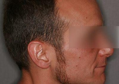 2-PRE-3-Alopecia-tipo-IV