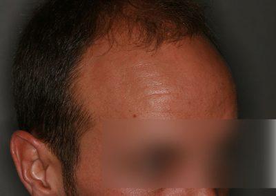2-PRE-4-Alopecia-tipo-IV