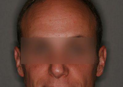 2-PRE-9-Alopecia-tipo-IV
