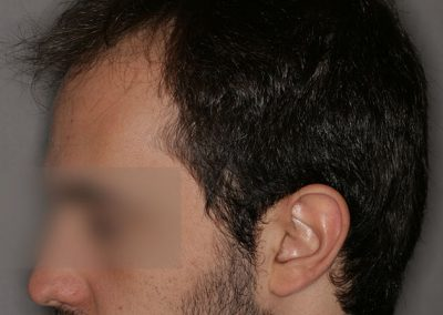 3-PRE-5-Alopecia-tipo-IV