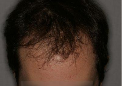 3-PRE-8-Alopecia-tipo-IV