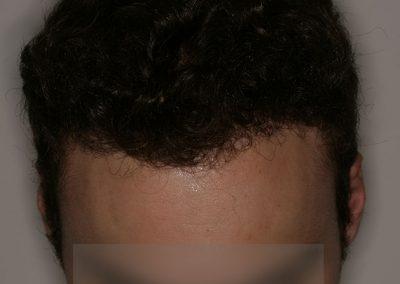 4-POST-2-Alopecia-tipo-III
