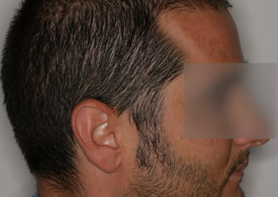 5-PRE-Alopecia-difusa-3