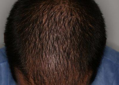5-PRE-Alopecia-difusa-7