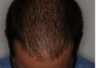 5-PRE-Alopecia-difusa-8