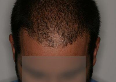 5-PRE-Alopecia-difusa-9