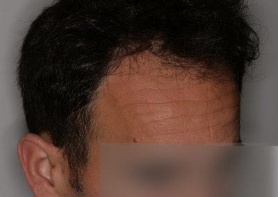 5-PRE-Alopecia-tipo-III