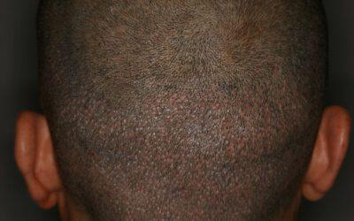 ¿Qué técnica es mejor para el trasplante de pelo: FUSS o FUE?