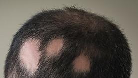 ¿Alopecia o calvicie?