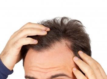 Alopecias reversibles