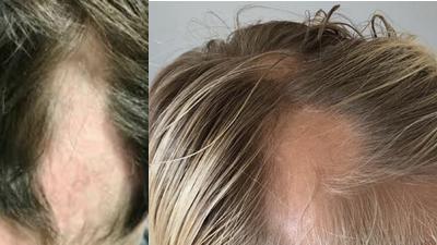 Alopecia areata o calva repentina